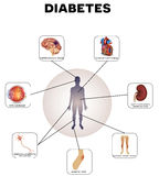Сахарный диабет Стоковое Изображение