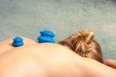 Салон красоты. Женщина получая массаж вакуума придавая форму чашки стекла курорта Стоковые Изображения RF