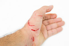 Свежая рана и кровь Стоковые Фото