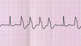 Свяжите ECG тесьмой с extrasystoles группы вентрикулярными Стоковые Изображения