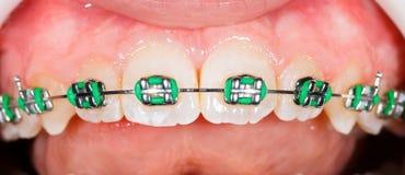 связывает зубы Стоковое фото RF