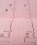 сердце анализа Стоковые Изображения