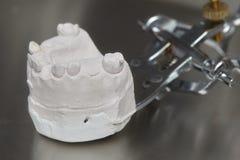 Серые зубоврачебные зубы протеза отливают в форму, глина человеческие камеди моделируют Стоковые Фотографии RF