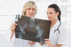 2 серьезных женских доктора рассматривая рентгеновский снимок Стоковое Фото