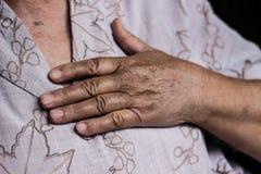Сердечная болезнь Стоковая Фотография RF