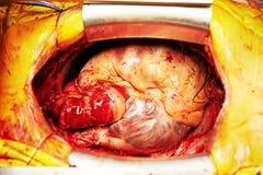 Сердечная трансплантация сердца хирургии Стоковое Изображение