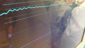 Сердечный монитор сток-видео
