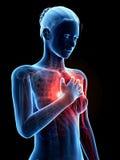 Сердечный приступ Стоковое фото RF