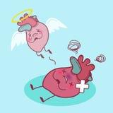 Сердце мертвое с инфарктом миокарда Стоковое Изображение RF