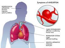 Симптомы аневризма Стоковое фото RF