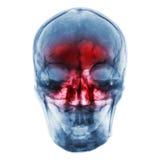 синусит Снимите рентгеновский снимок человеческого черепа с воспламененный на синусе Стоковые Изображения