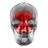 синусит Снимите рентгеновский снимок человеческого черепа с воспламененный на синусе Стоковые Фото