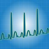 Синь биения сердца Стоковые Фотографии RF