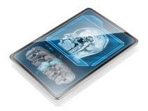 Сканирование мозга стоковое изображение rf