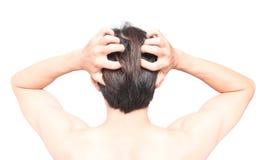 Скальп руки человека крупного плана зудящее, концепция ухода за волосами здоровая Стоковые Фотографии RF