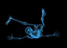 скелет x луча Стоковое Изображение