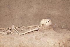 скелет Череп Trepanned Стоковые Фото