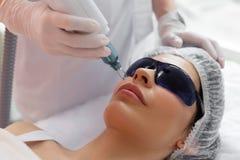 Славная милая женщина имея epilation лазера лицевое стоковая фотография rf