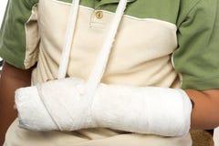 сломанная косточка Стоковая Фотография RF