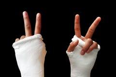 сломанная рукоятка 01 Стоковое фото RF