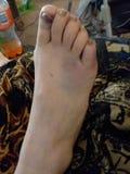 Сломанные пальцы ноги потеха стоковые изображения rf