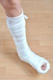 сломленная нога Стоковое Фото