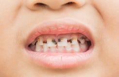 Сломленные зубы в детях стоковые изображения