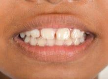 Сломленные зубы в детях стоковые фотографии rf