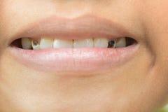Сломленные зубы в детях стоковое фото