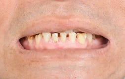 Сломленные зубы и пятна стоковое фото