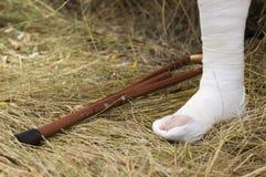 сломленный гипсолит ноги костыля стоковые изображения