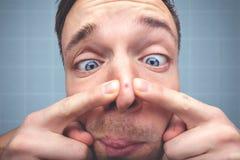 Смешной портрет человека с прыщом на носе стоковая фотография