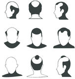 Собрание вектора облыселых головок силуэта Стоковая Фотография