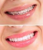 Совершенные зубы перед и после расчалками стоковое фото