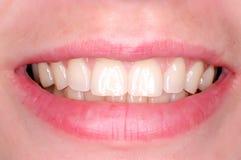 совершенные зубы Стоковые Изображения