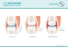 Совместное infograph анатомии, остеоартрита и ревматоидного артрита иллюстрация вектора