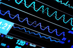 Современный монитор ICU стоковая фотография rf