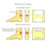 Сорванное сухожилие Ахилла иллюстрация вектора