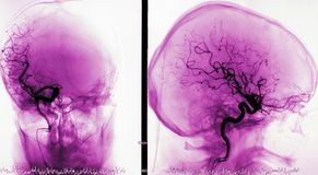 сосуды мозга артериографии стоковое фото rf