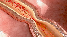 Спазм артерии иллюстрация штока