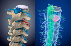 Спинной мозг под давлением выпячивая диска Взгляд рентгеновского снимка Медицински точная иллюстрация иллюстрация вектора
