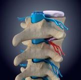 Спинной мозг под давлением выпячивая диска бесплатная иллюстрация