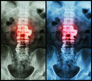 Спондилез (lumbo рентгеновского снимка фильма - обрядовый позвоночник: покажите спондилез на L2-3) стоковые изображения
