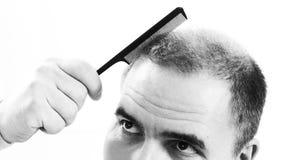 Средн-постаретый человек, который относит конец алопесии плешивости выпадения волос вверх по черно-белой, белой предпосылке стоковые фото