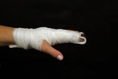 Стабилизация сломленного пальца Стоковые Изображения