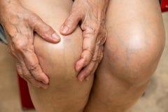 Старшая женщина страдая от коленей мучит сидеть на стуле, массажируя ее рукой, концепция тела стоковое изображение rf