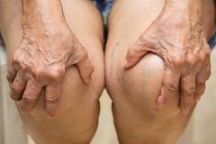 Старшая женщина страдая от стула боли колена сидя, массажируя ее тягостное колено вручную стоковые фото