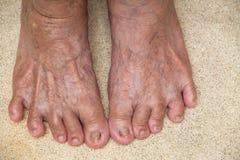 Старшие ноги ` s женщины стоят на предпосылке текстуры камня Polished, концепции тела стоковая фотография rf