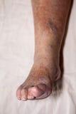 Старшие проблемы ноги Стоковая Фотография RF