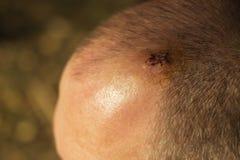 Стежки после человека сломали его голову стоковое изображение rf